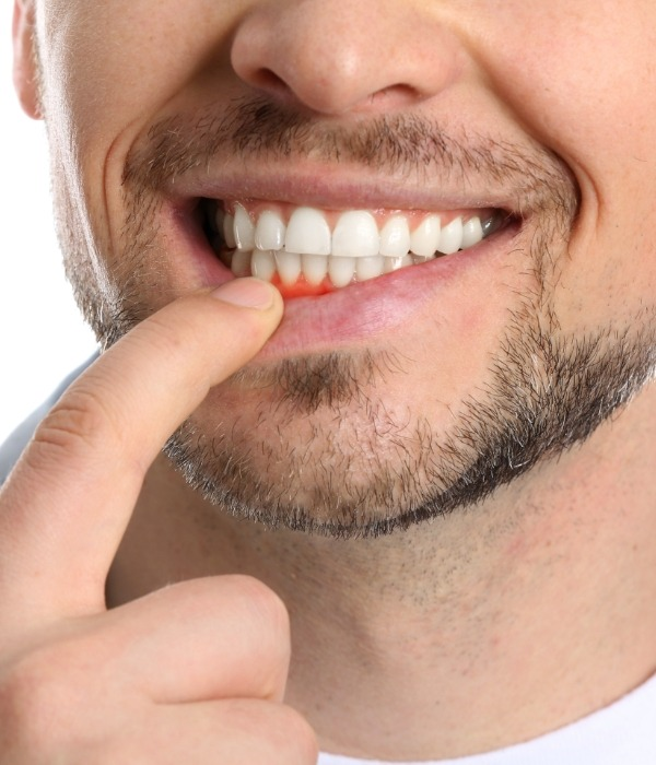 Man in need of gum disease therapy pointing to inflamed soft tissue