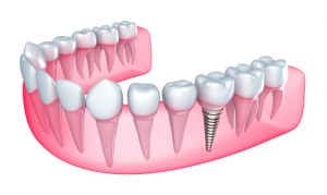 Dental implants in Colorado Springs provide secure and beautiful smiles.