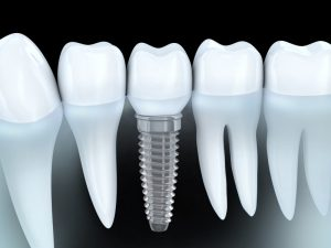 Benefit from affordable Colorado Springs dental implants.