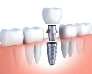 implant diagram