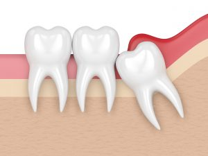 Impacted wisdom tooth causing gum irritation
