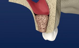 Digital image of a bone graft